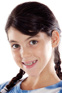 photo of girl with braces
